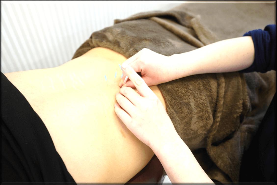 ぎっくり腰の施術法