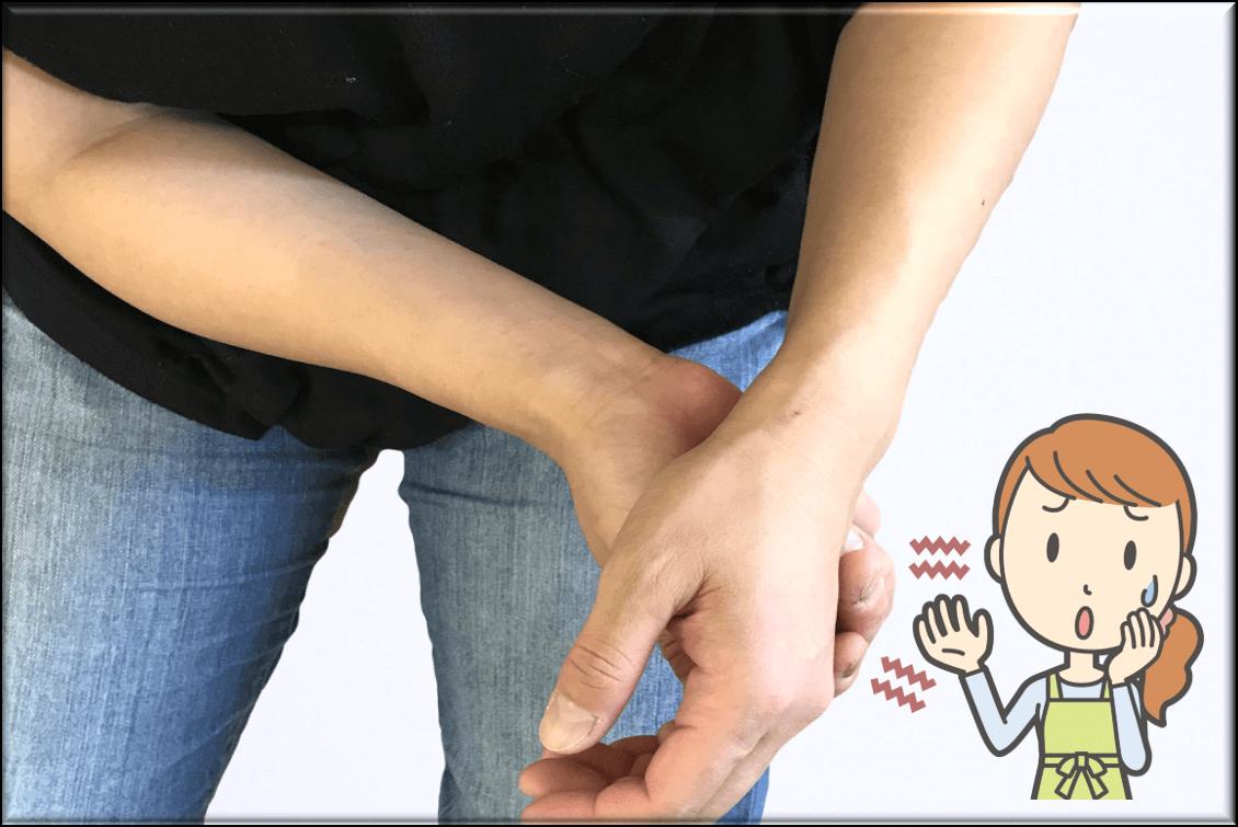 手のしびれの原因と改善方法