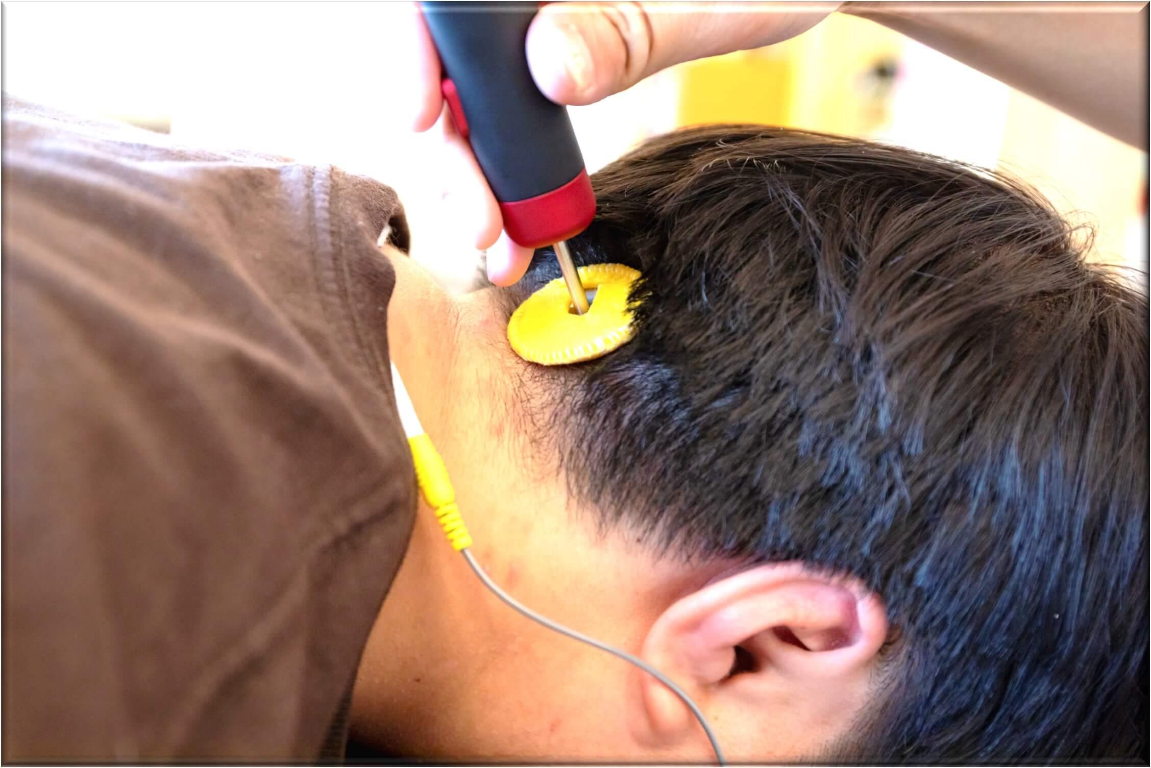 頭痛の施術法