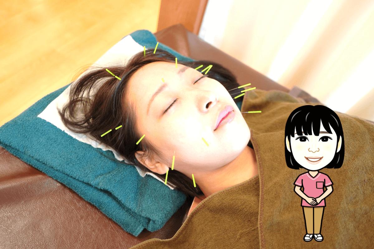 美容鍼の施術法